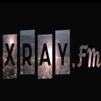 XRAY Music listen live